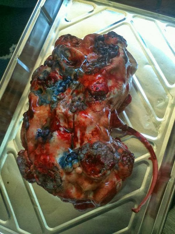 Weird Creepy Spooky and Scary Halloween Cakes Polycistic Kidney Disease cake
